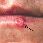 Herpes Simpleks na usni